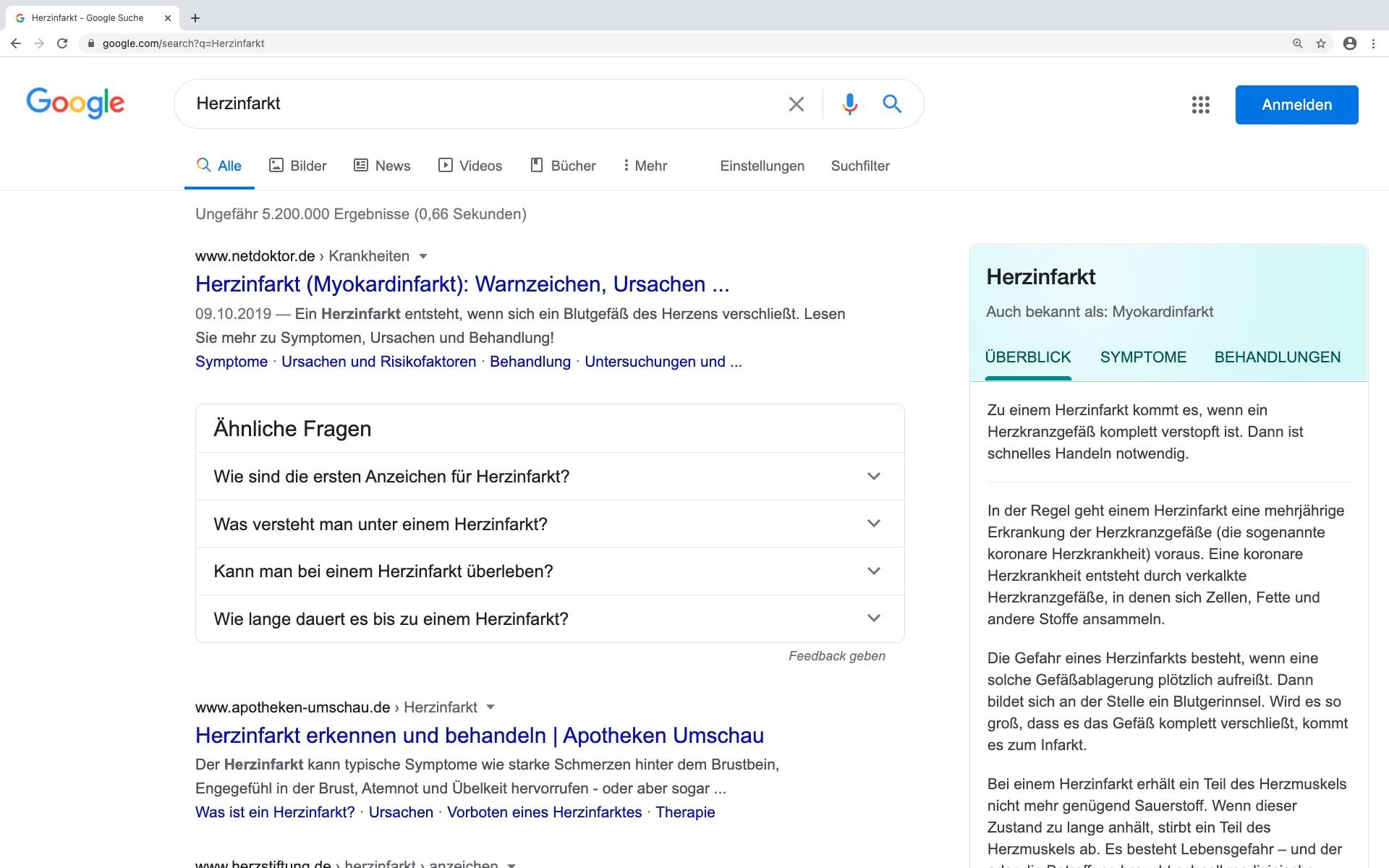 Screenshot Google-Suche zu Herzinfarkt